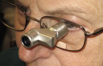 Image of 3x VES mini fitted through patients own lens and drilled for accurate alignment